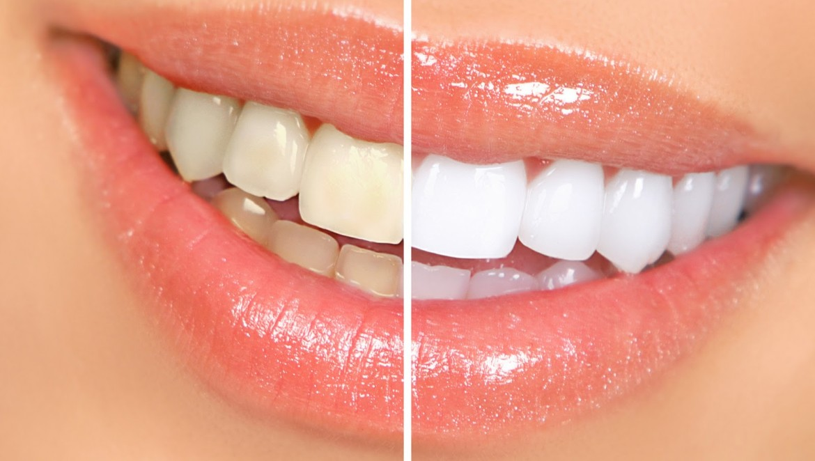 tooth whitening cost